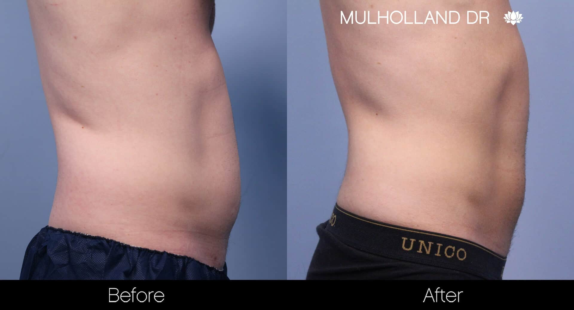 SculpSure - Before and After Gallery – Photo 17