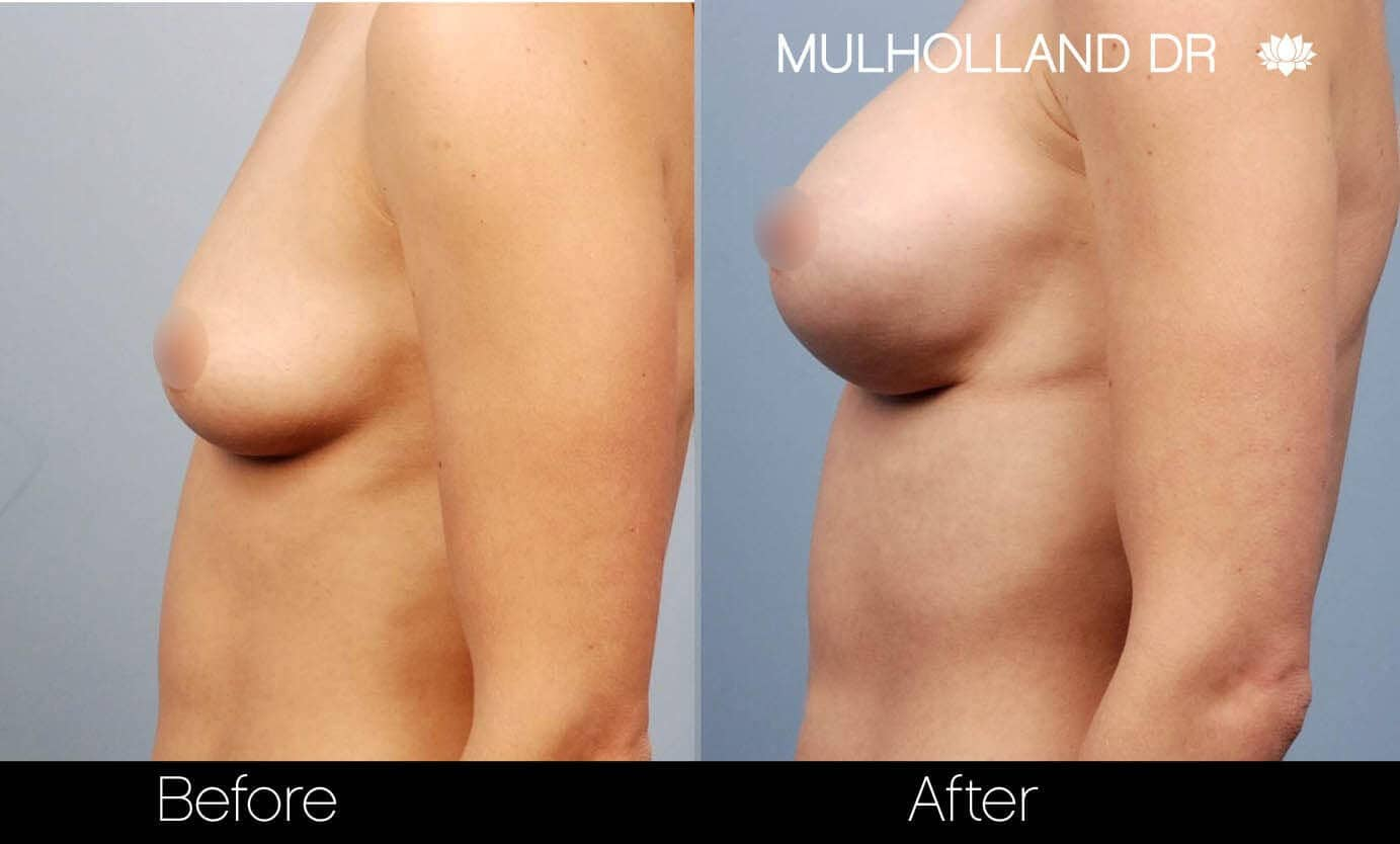 Breast Augmentation - Before and After Gallery – Photo 19