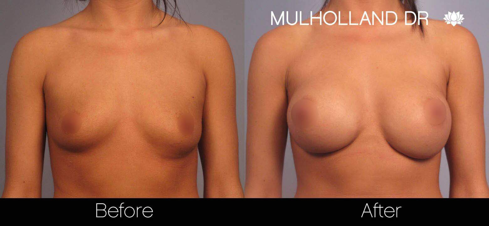 Breast Augmentation - Before and After Gallery – Photo 1