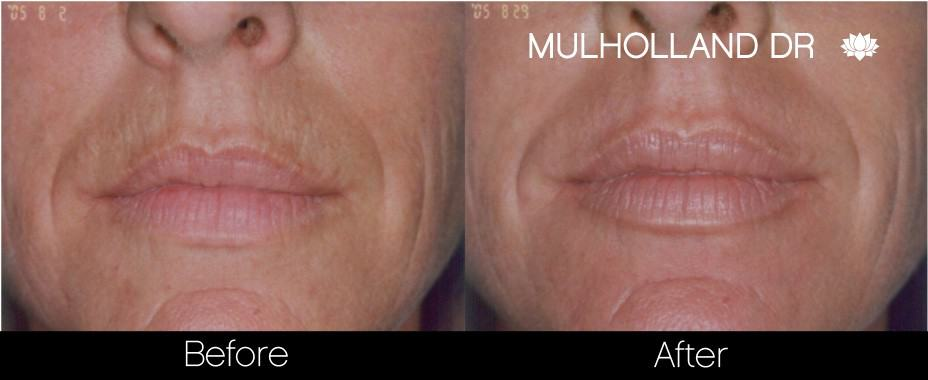 Botox Before and After Gallery - Photo 21