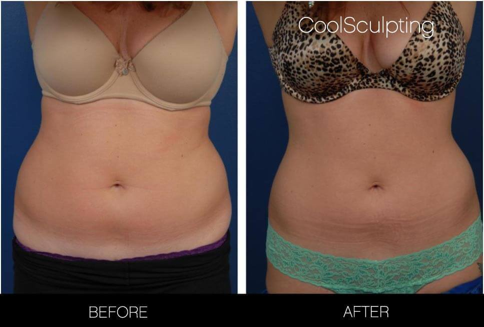 CoolSculpting - Before and After Gallery – Photo 20