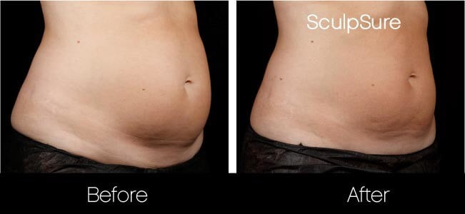 SculpSure - Before and After Gallery – Photo 22