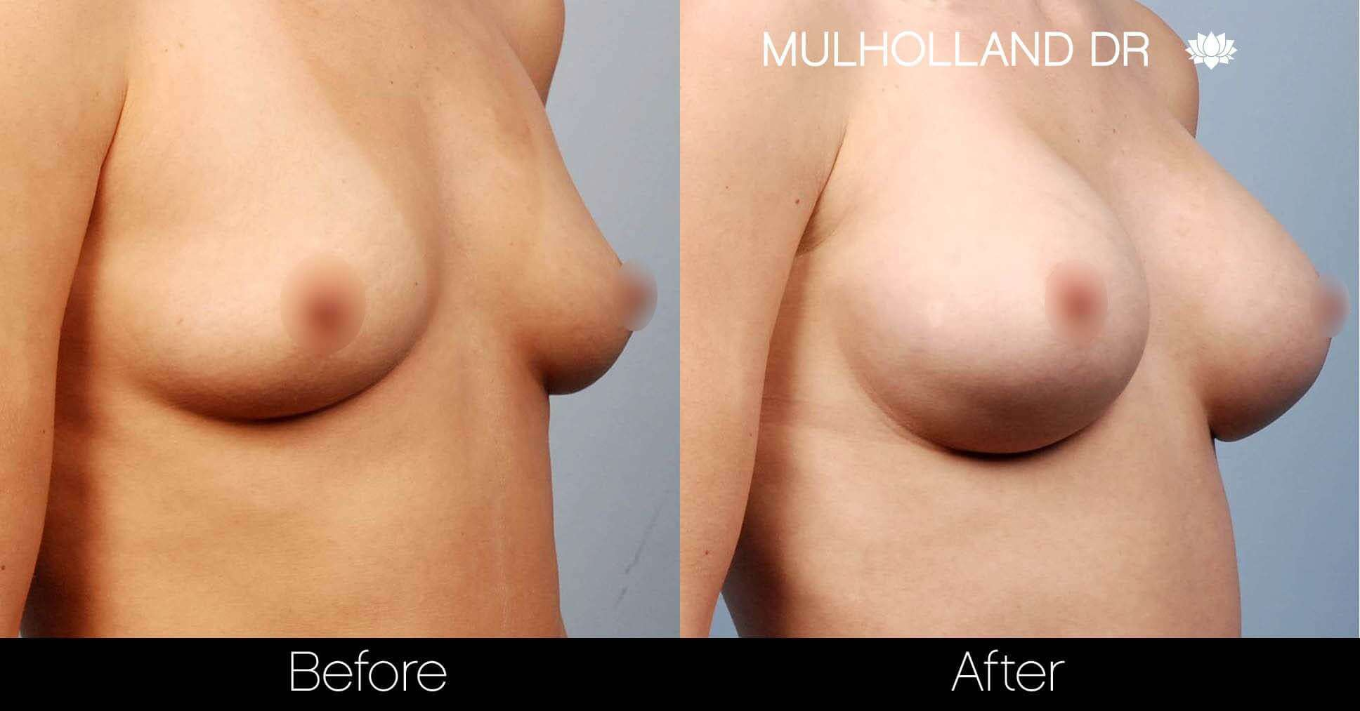 Breast Augmentation - Before and After Gallery – Photo 20