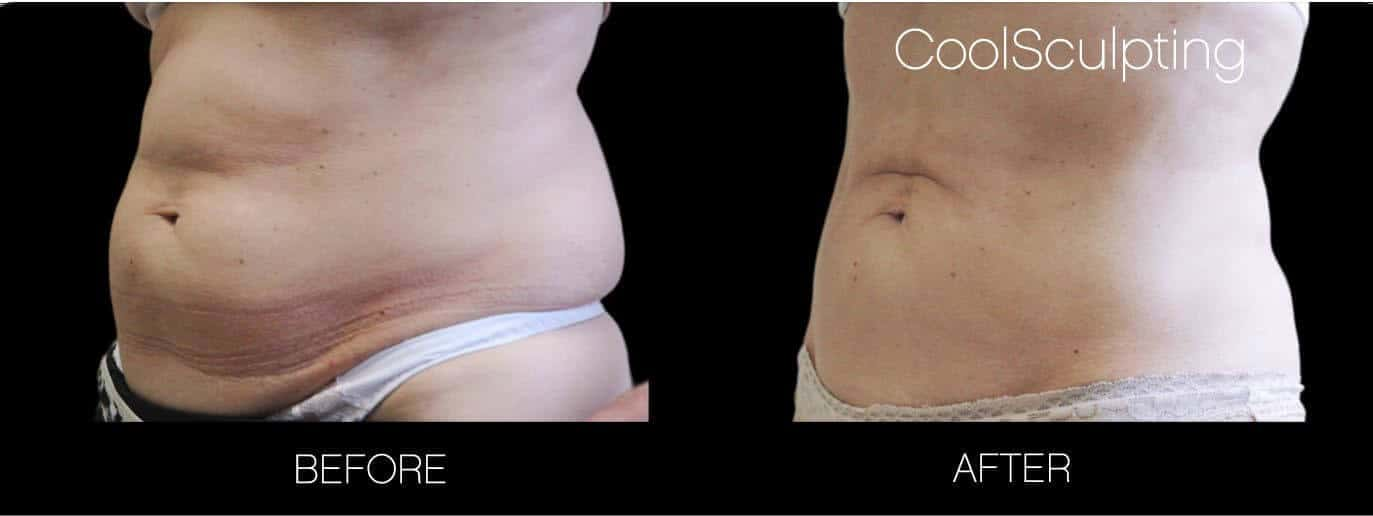 CoolSculpting - Before and After Gallery – Photo 21