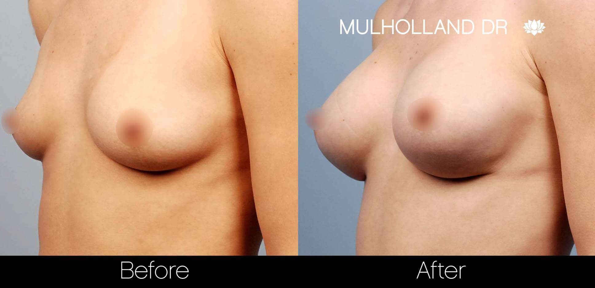 Breast Augmentation - Before and After Gallery – Photo 21