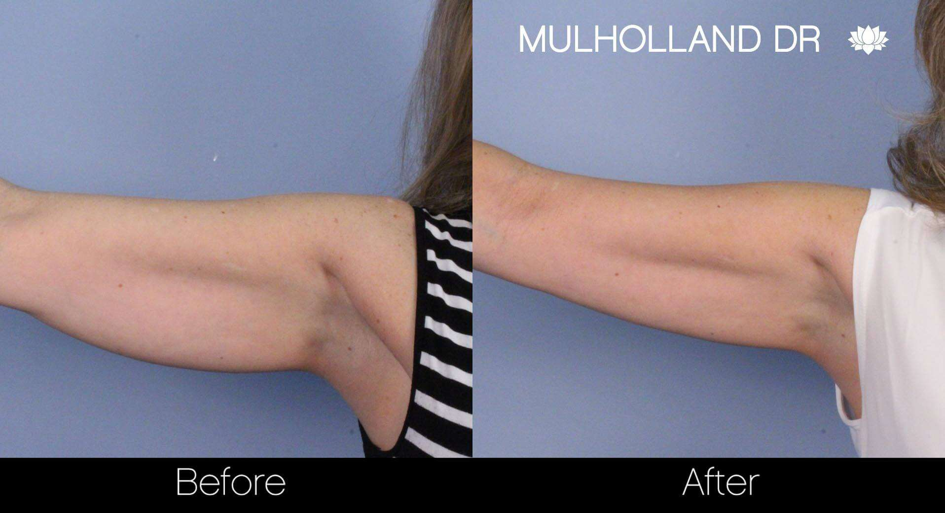 SculpSure - Before and After Gallery – Photo 13