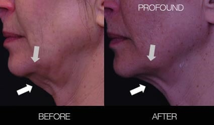 Non-Surgical Facelift - Before and After Gallery – Photo 24