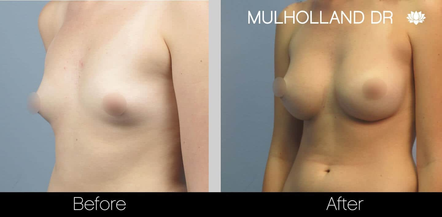 Breast Augmentation - Before and After Gallery – Photo 23