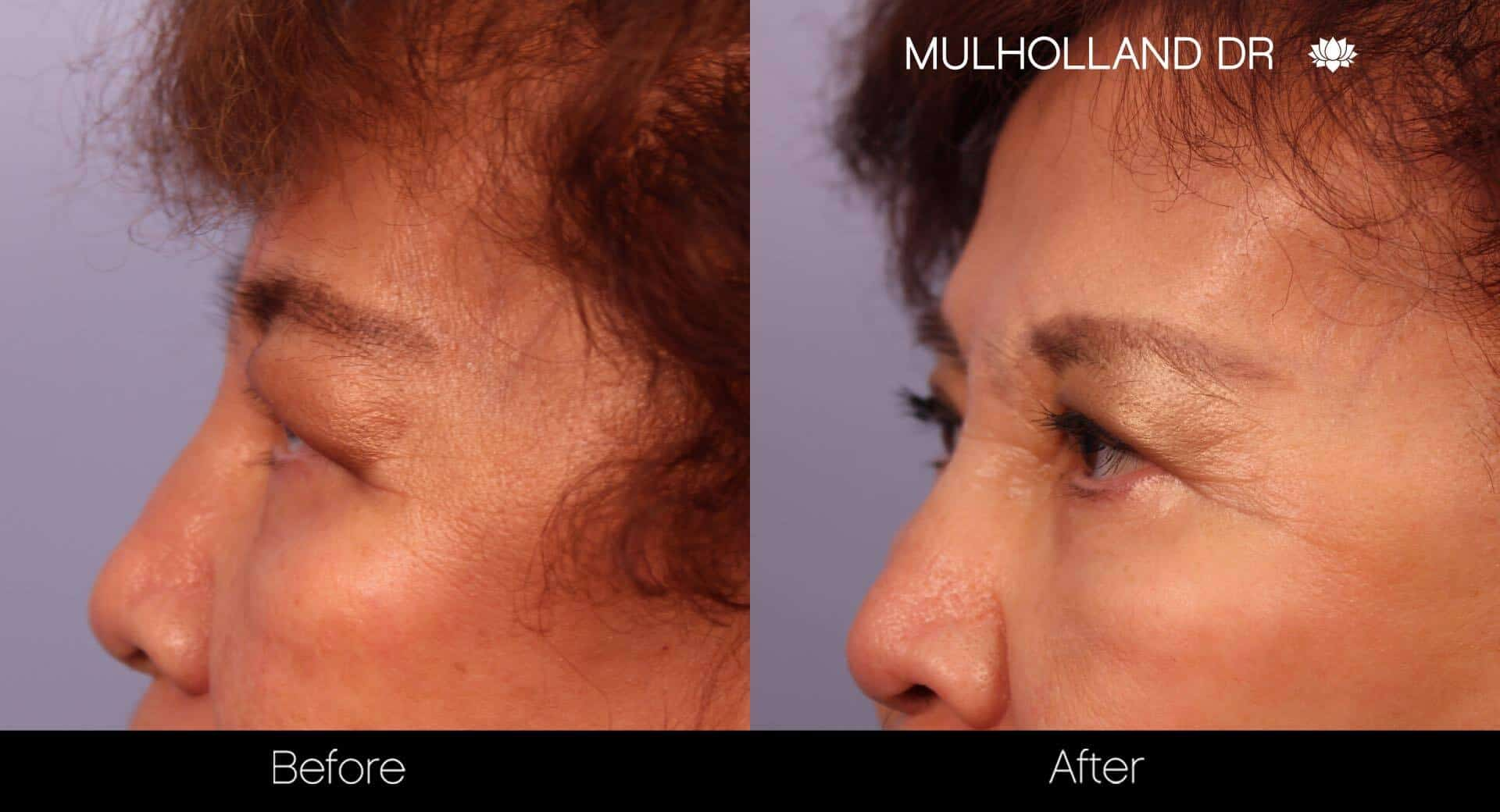 Blepharoplasty - Before and After Gallery – Photo 23