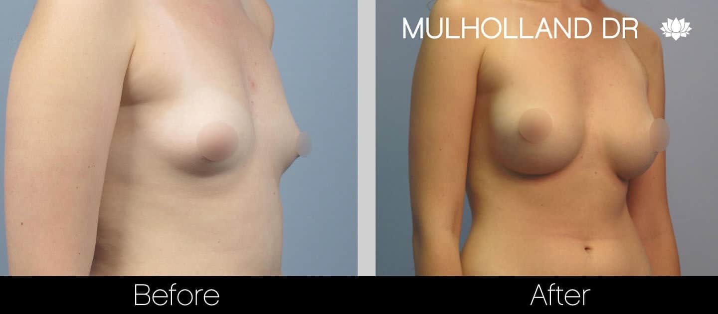 Breast Augmentation - Before and After Gallery – Photo 24