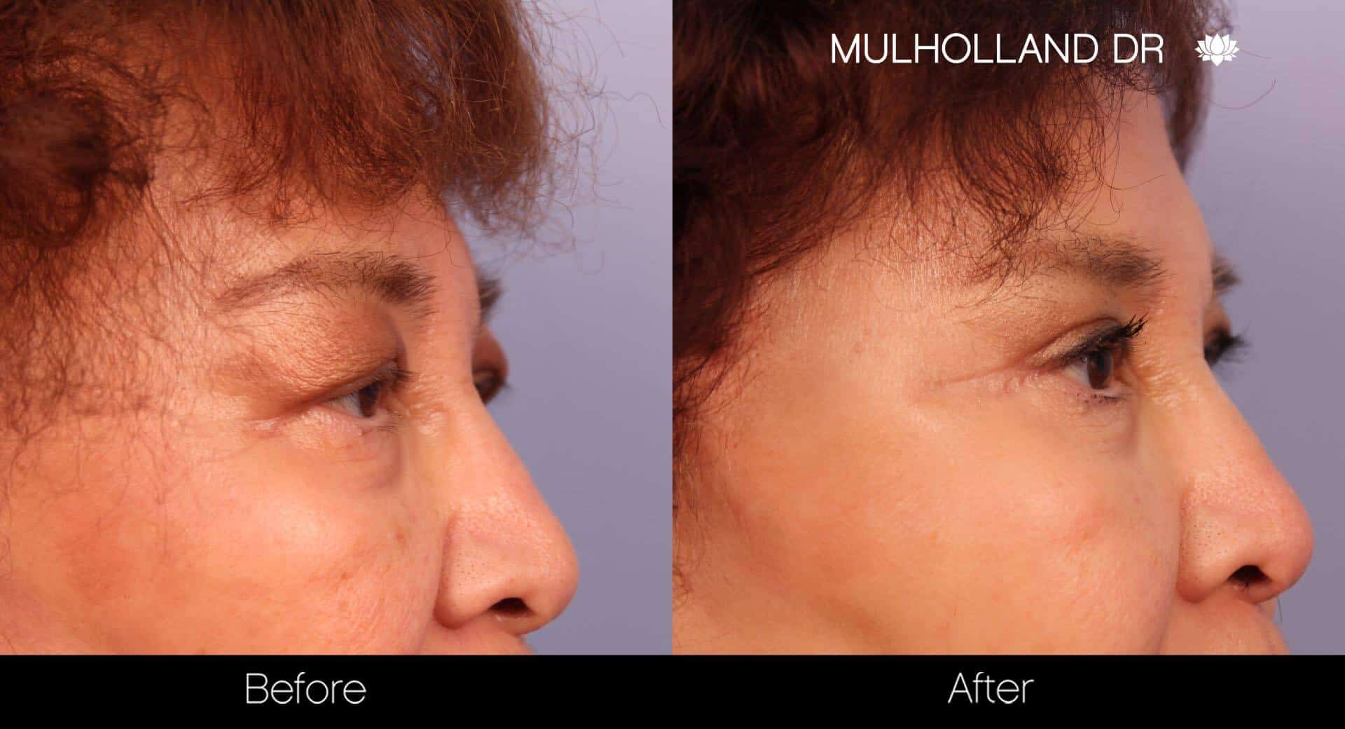 Blepharoplasty - Before and After Gallery – Photo 24