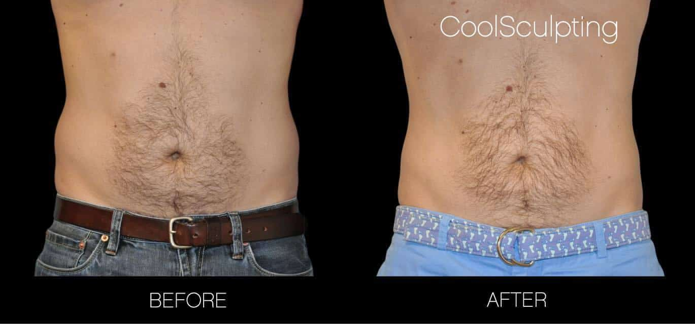 CoolSculpting - Before and After Gallery – Photo 25