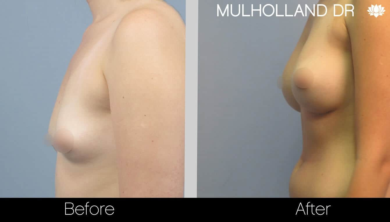 Breast Augmentation - Before and After Gallery – Photo 25