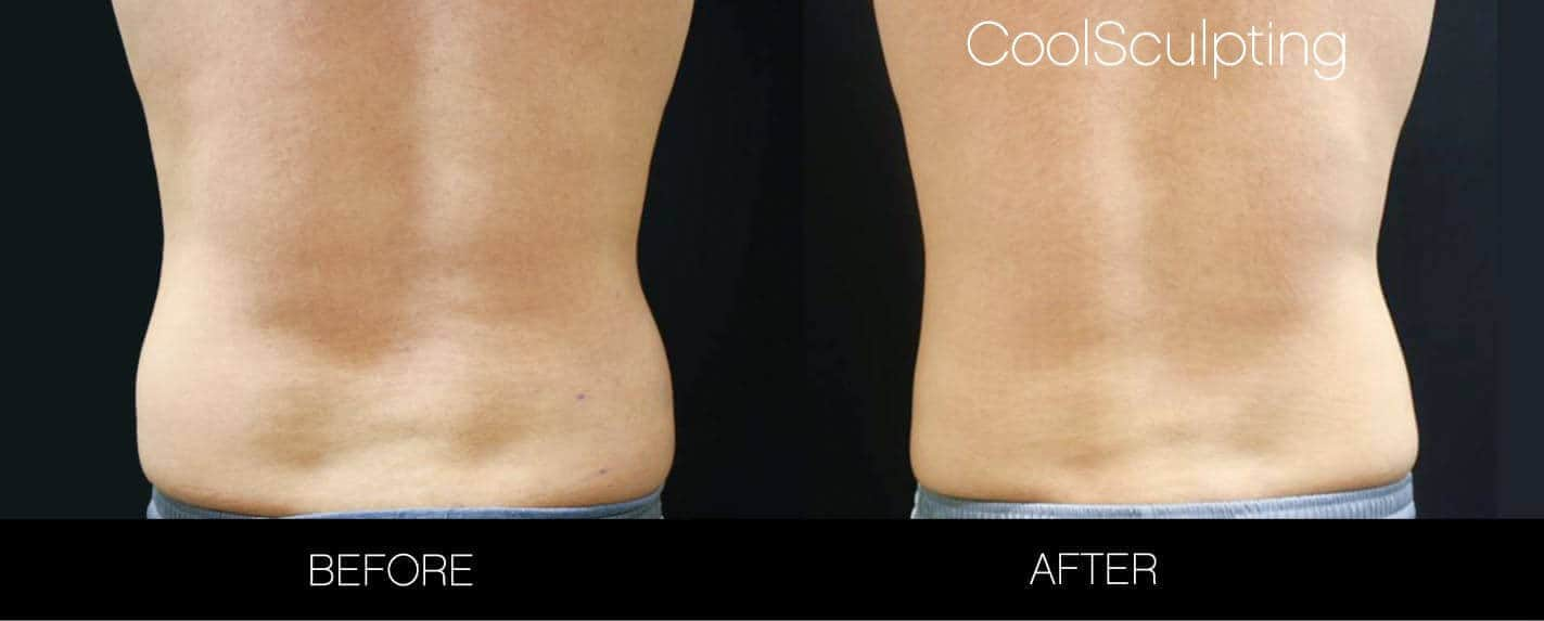 CoolSculpting - Before and After Gallery – Photo 26