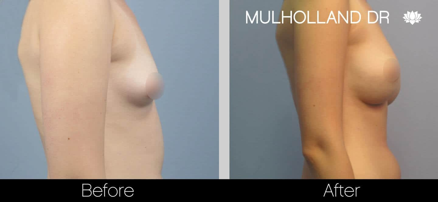 Breast Augmentation - Before and After Gallery – Photo 26