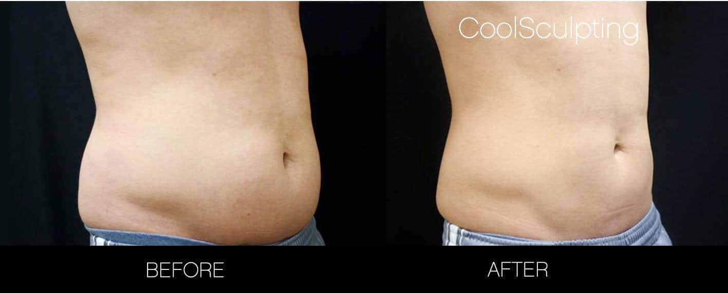 CoolSculpting - Before and After Gallery – Photo 27