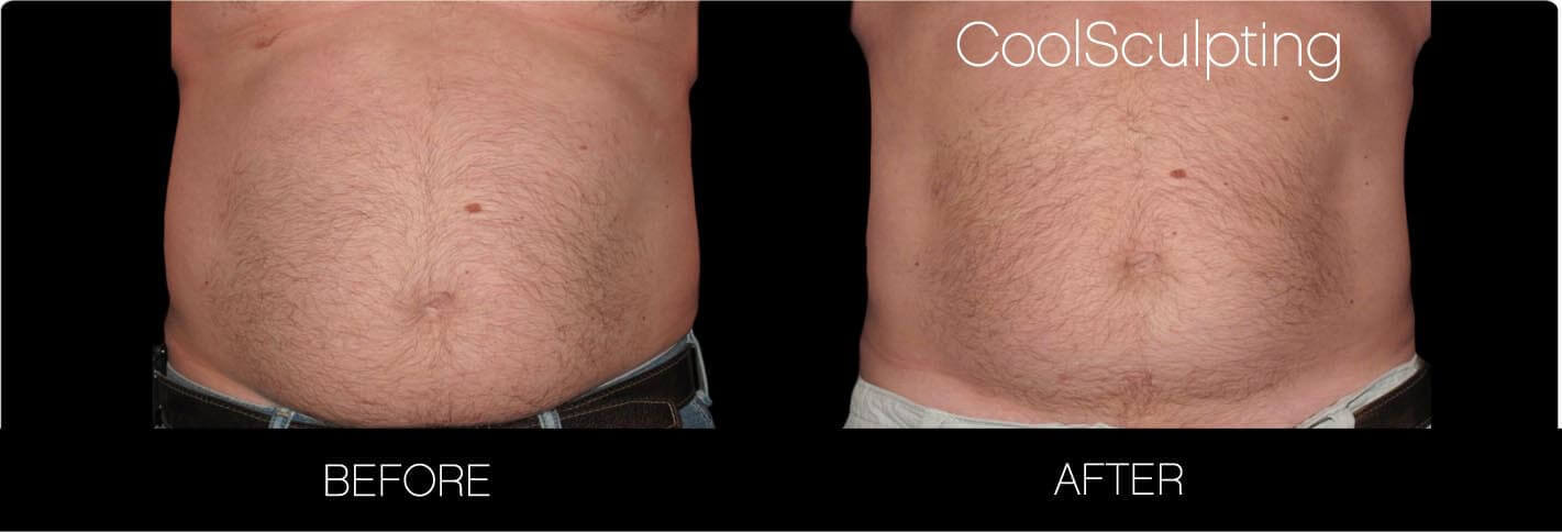 CoolSculpting - Before and After Gallery – Photo 28