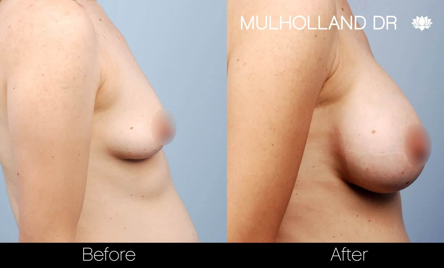 Breast Augmentation - Before and After Gallery – Photo 28