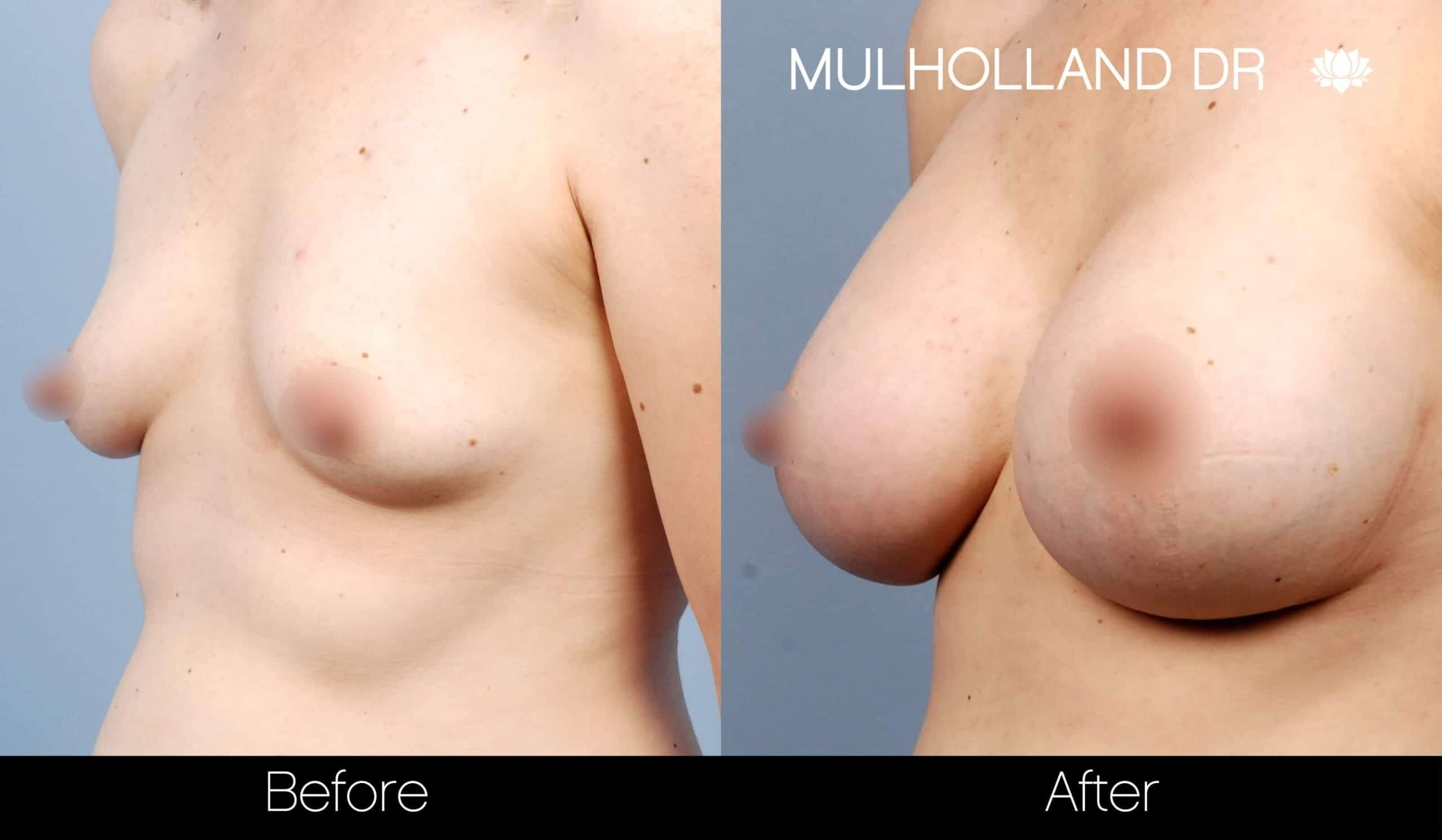 Breast Augmentation - Before and After Gallery – Photo 29