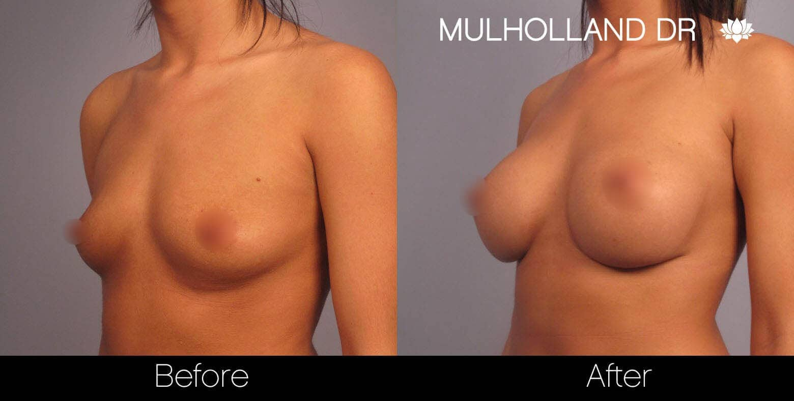Breast Augmentation - Before and After Gallery – Photo 2