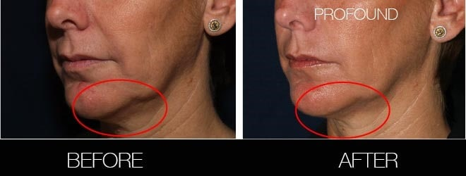 Non-Surgical Facelift - Before and After Gallery – Photo 30