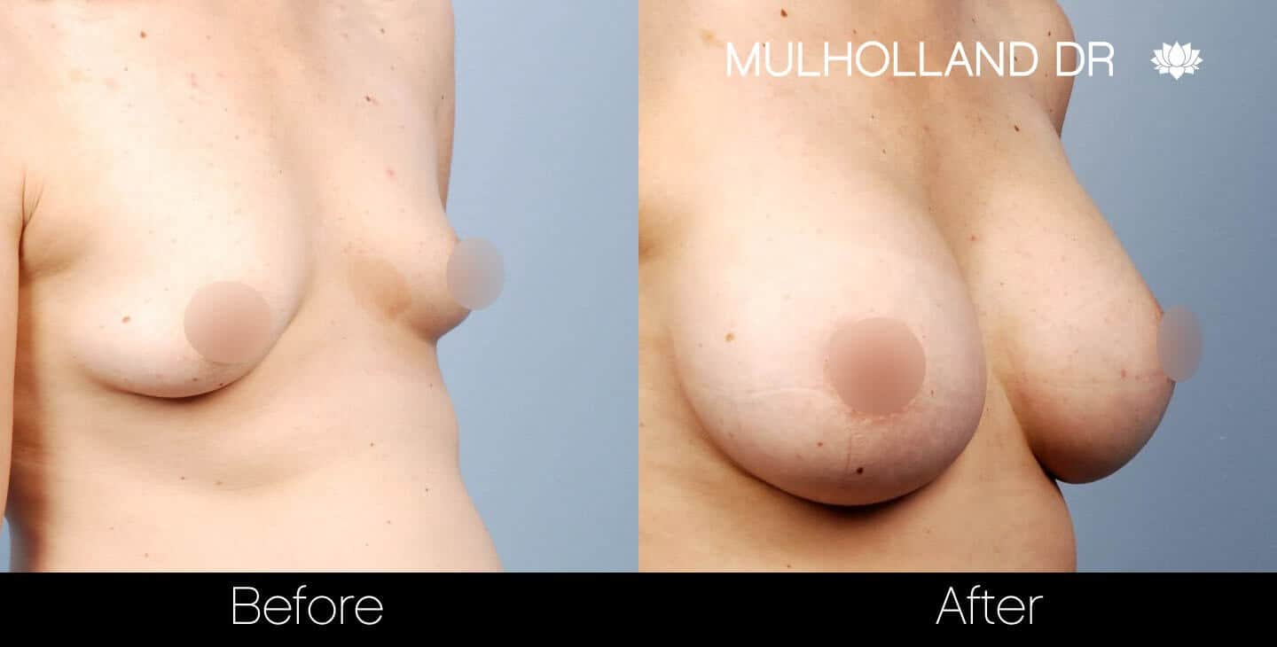 Breast Augmentation - Before and After Gallery – Photo 30