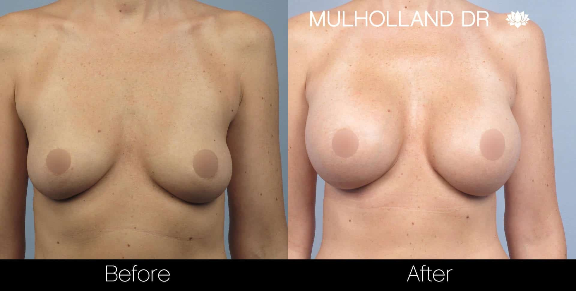 Breast Augmentation - Patient 31