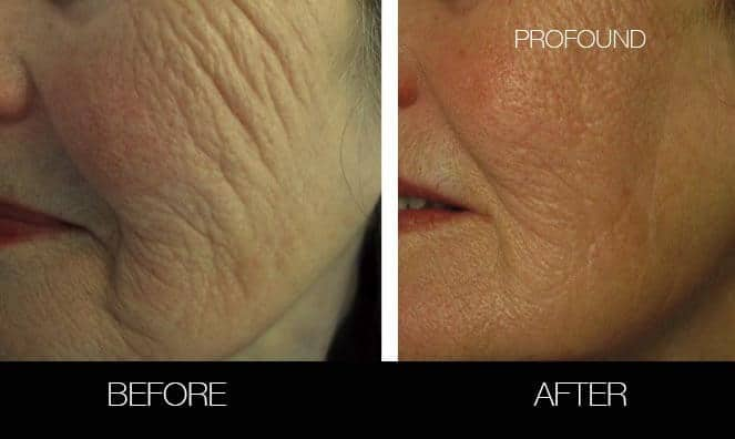 Non-Surgical Facelift - Before and After Gallery – Photo 32