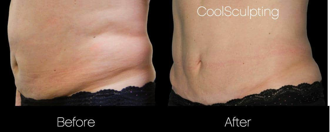 CoolSculpting - Before and After Gallery – Photo 32