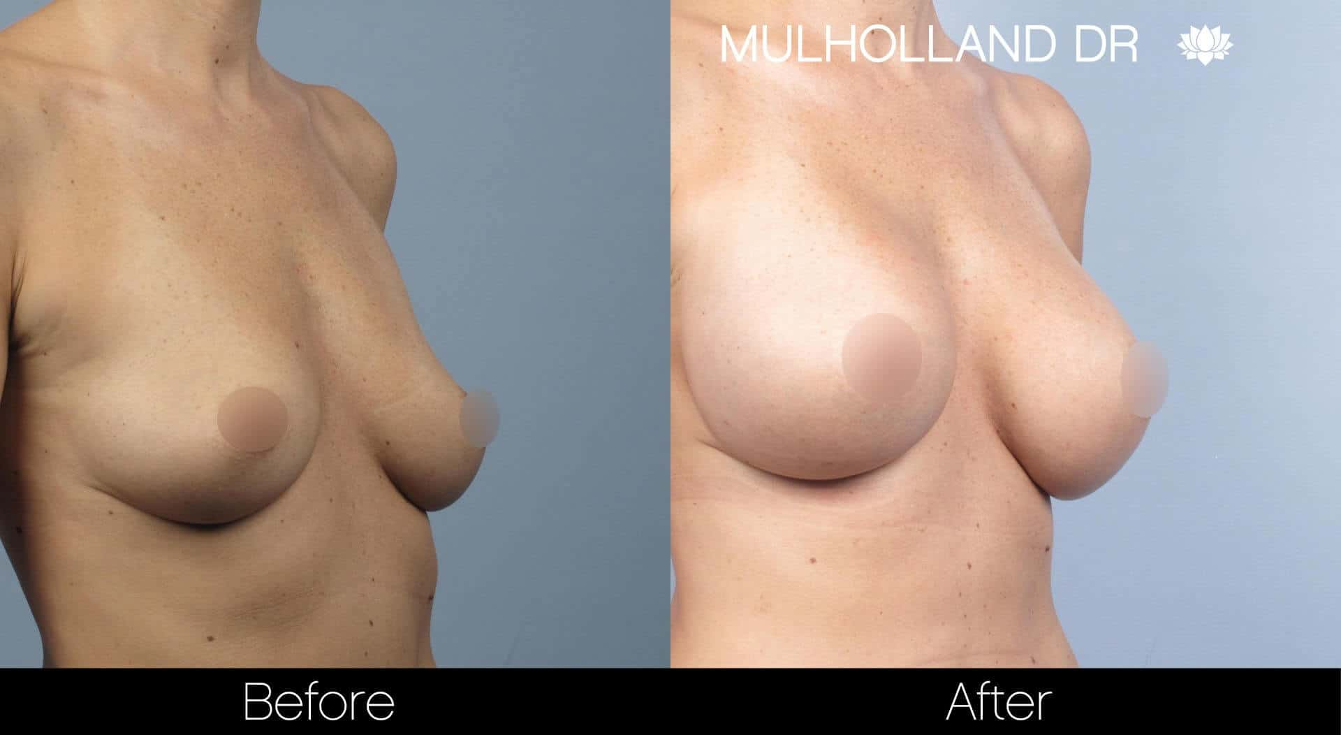 Breast Augmentation - Patient 32