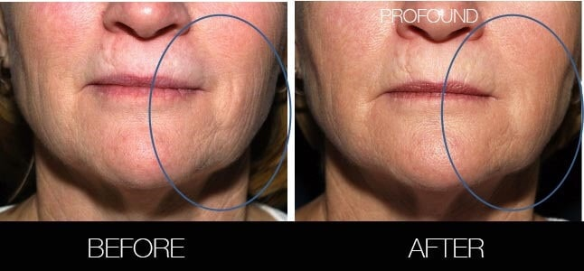 Non-Surgical Facelift - Before and After Gallery – Photo 34