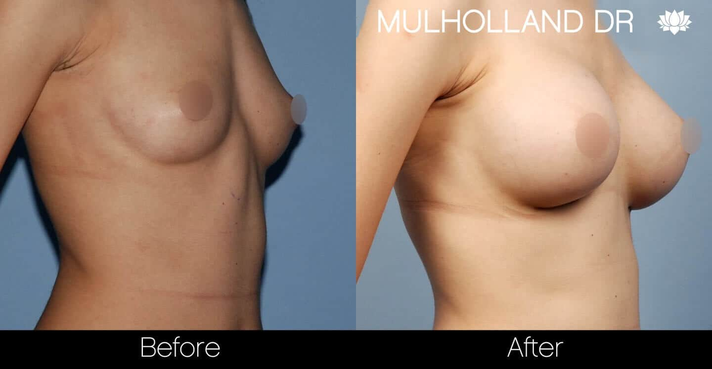 Breast Augmentation - Before and After Gallery – Photo 34