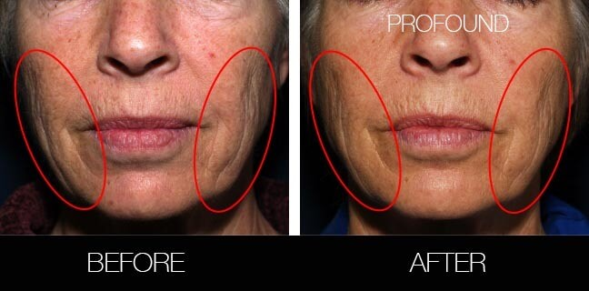 Non-Surgical Facelift - Before and After Gallery – Photo 35