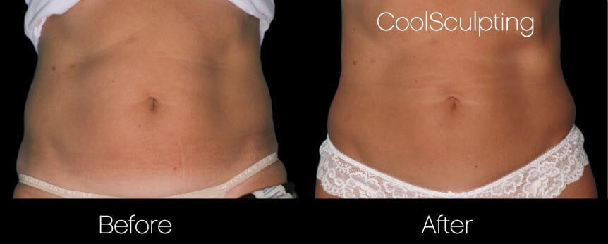 CoolSculpting - Before and After Gallery – Photo 35