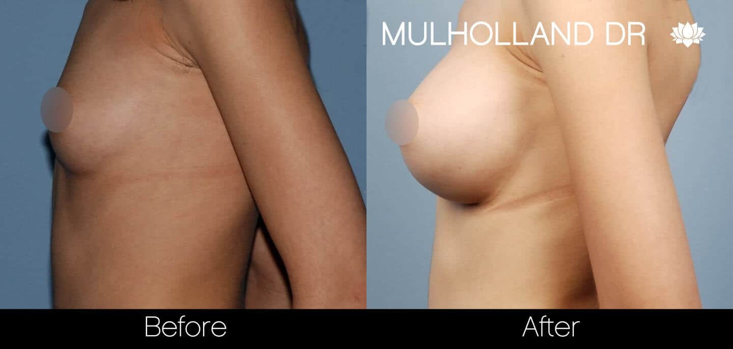 Breast Augmentation - Before and After Gallery – Photo 35