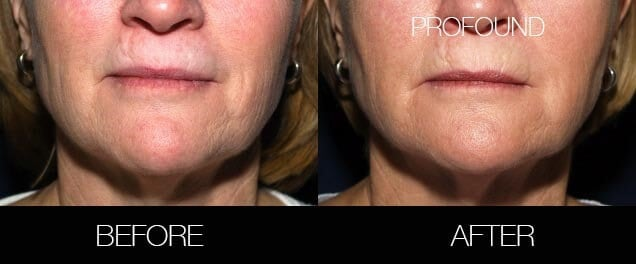 Non-Surgical Facelift - Before and After Gallery – Photo 36
