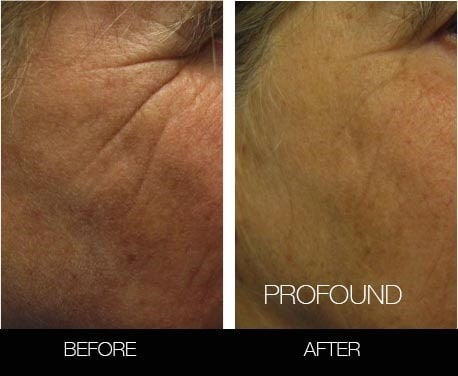Non-Surgical Facelift - Before and After Gallery – Photo 37