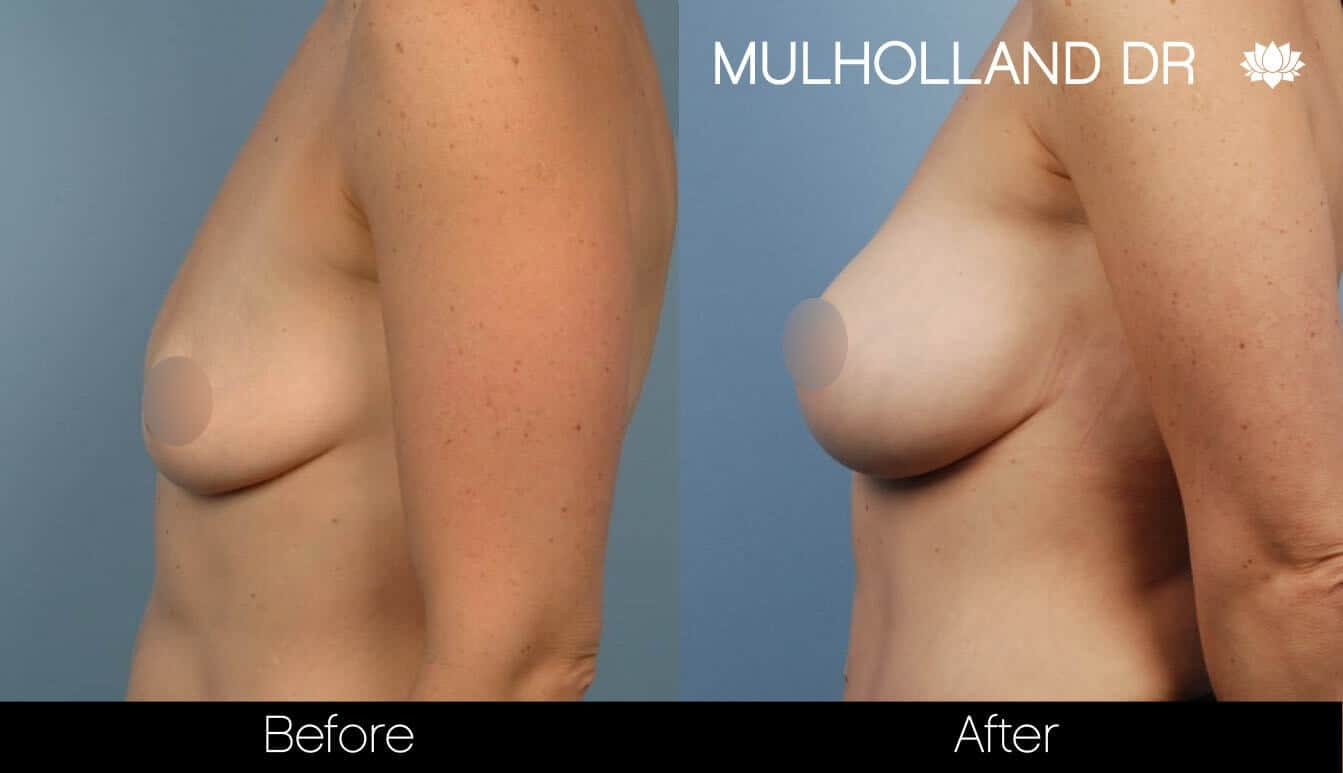 Breast Augmentation - Before and After Gallery – Photo 37