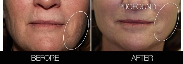 Non-Surgical Facelift - Before and After Gallery – Photo 38