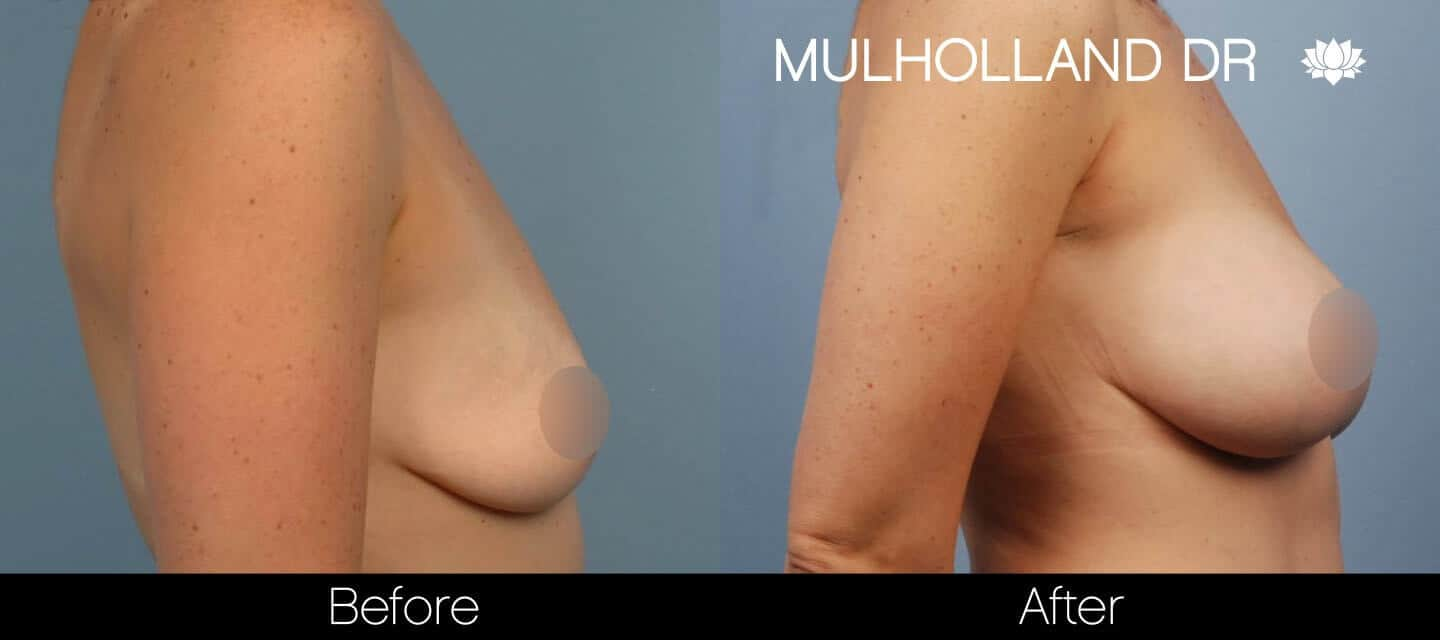 Breast Augmentation - Before and After Gallery – Photo 38