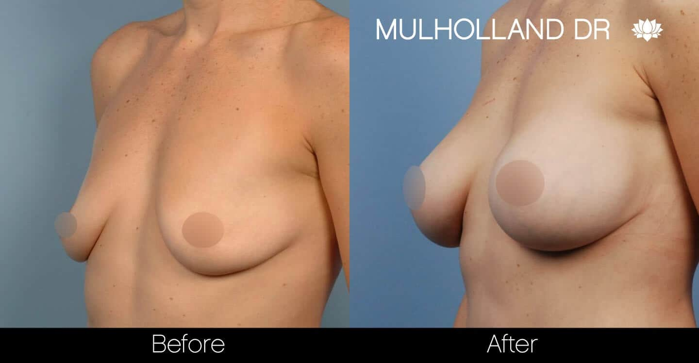 Breast Augmentation - Before and After Gallery – Photo 39