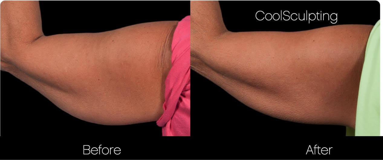 CoolSculpting - Before and After Gallery – Photo 40