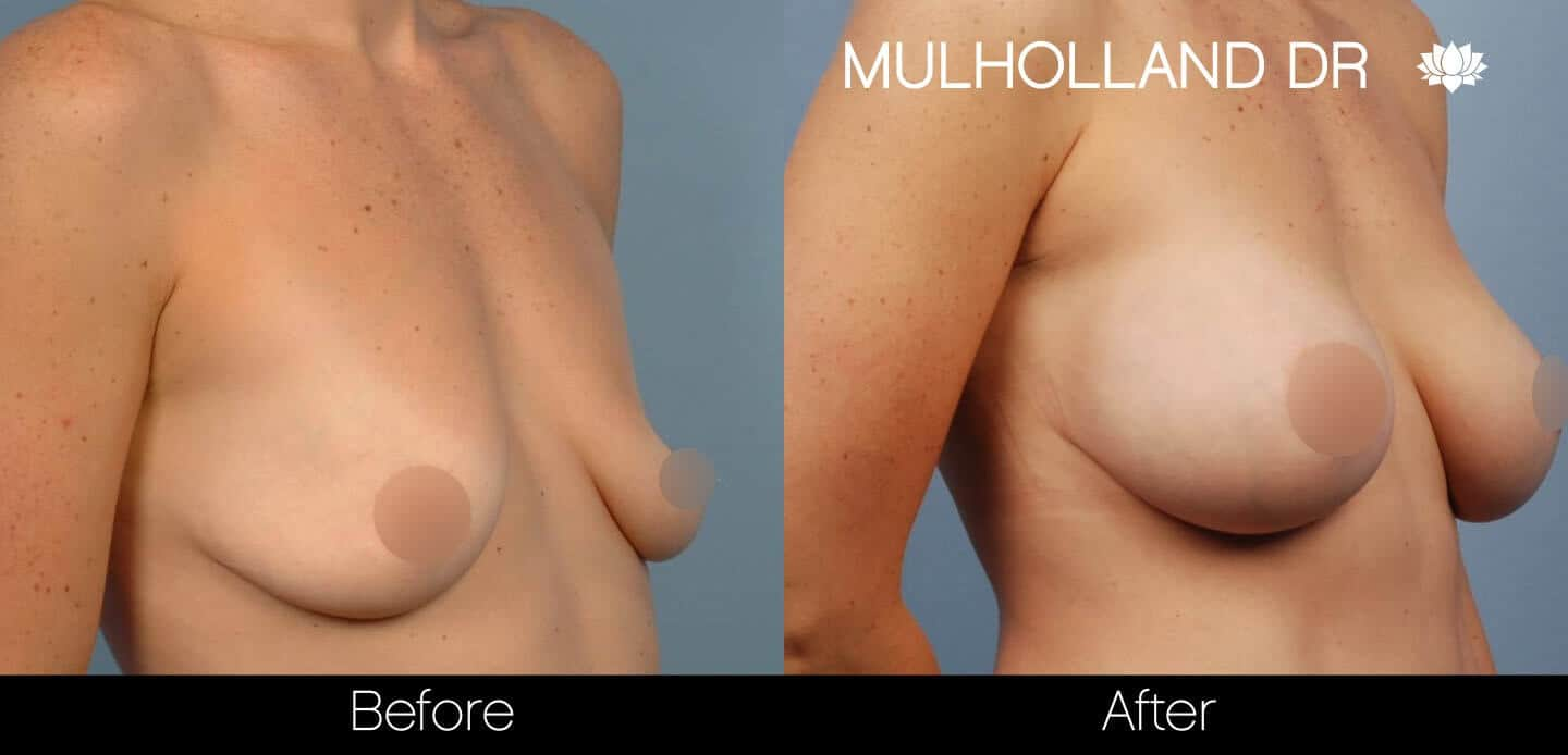 Breast Augmentation - Before and After Gallery – Photo 40