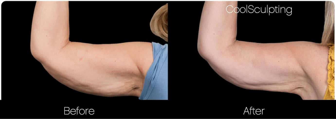 CoolSculpting - Before and After Gallery – Photo 41