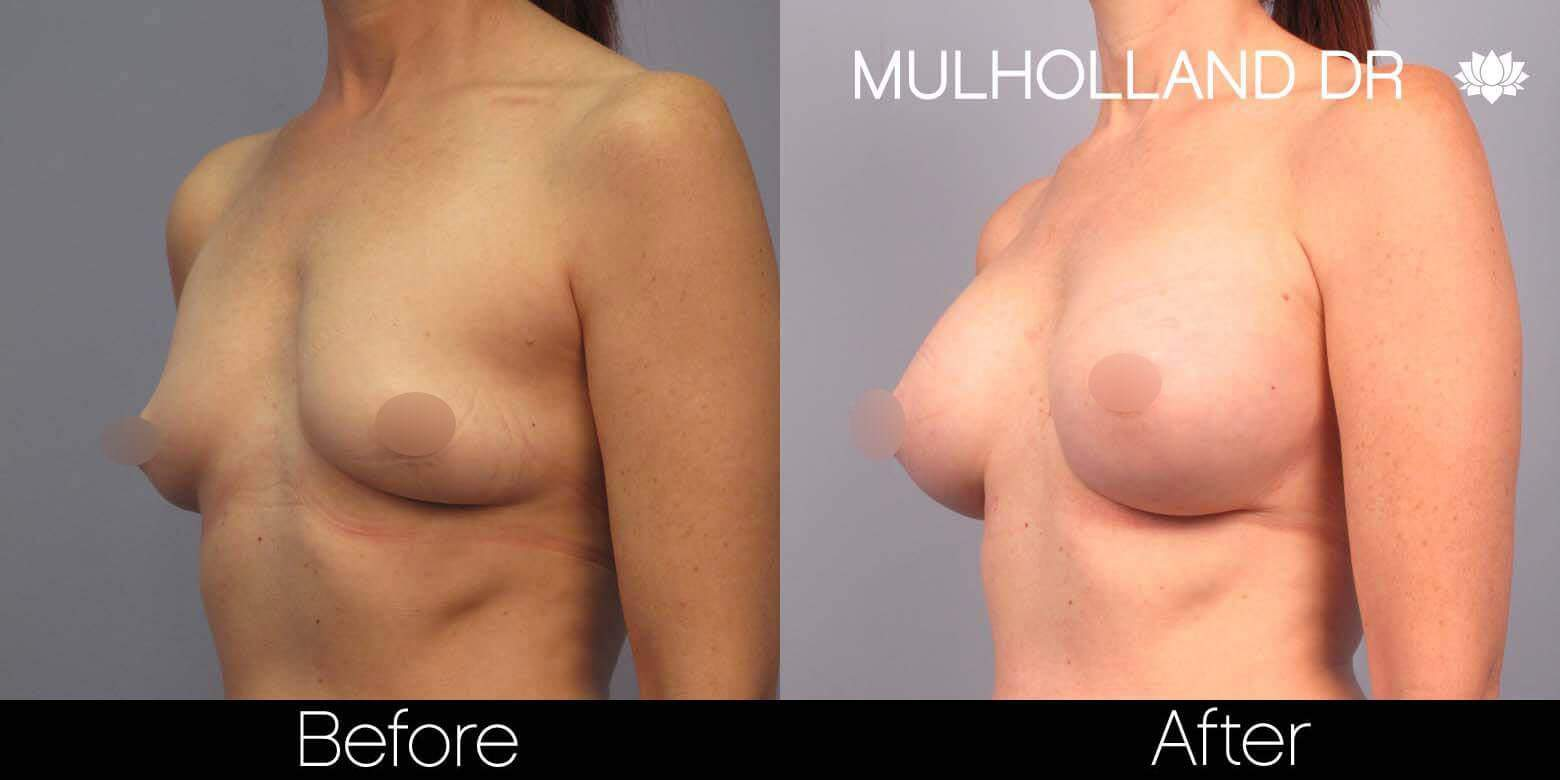 Breast Augmentation - Before and After Gallery – Photo 41