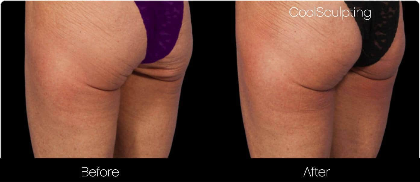 CoolSculpting - Before and After Gallery – Photo 42