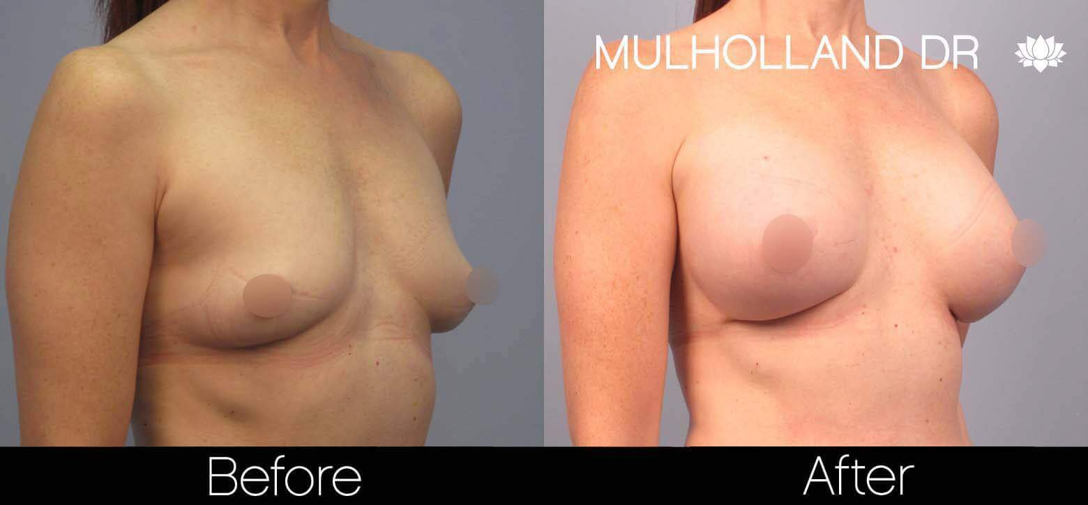 Breast Augmentation - Before and After Gallery – Photo 42