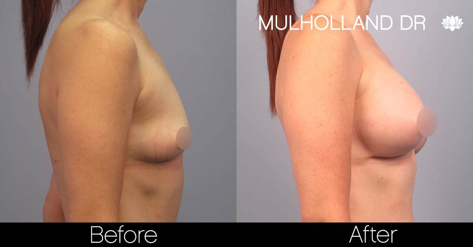 Breast Augmentation - Before and After Gallery – Photo 43