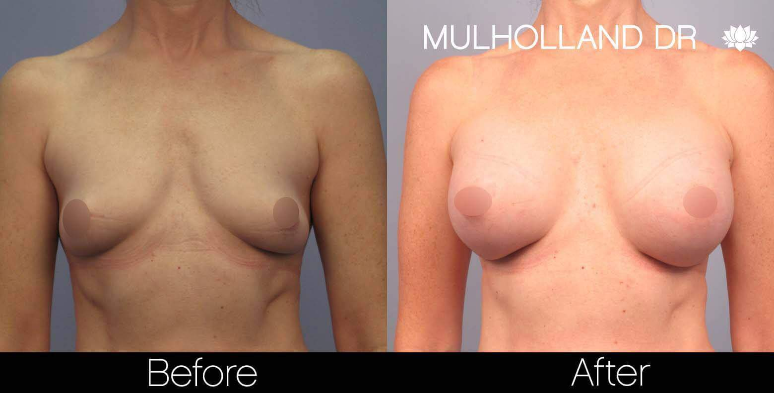 Breast Augmentation - Before and After Gallery – Photo 44