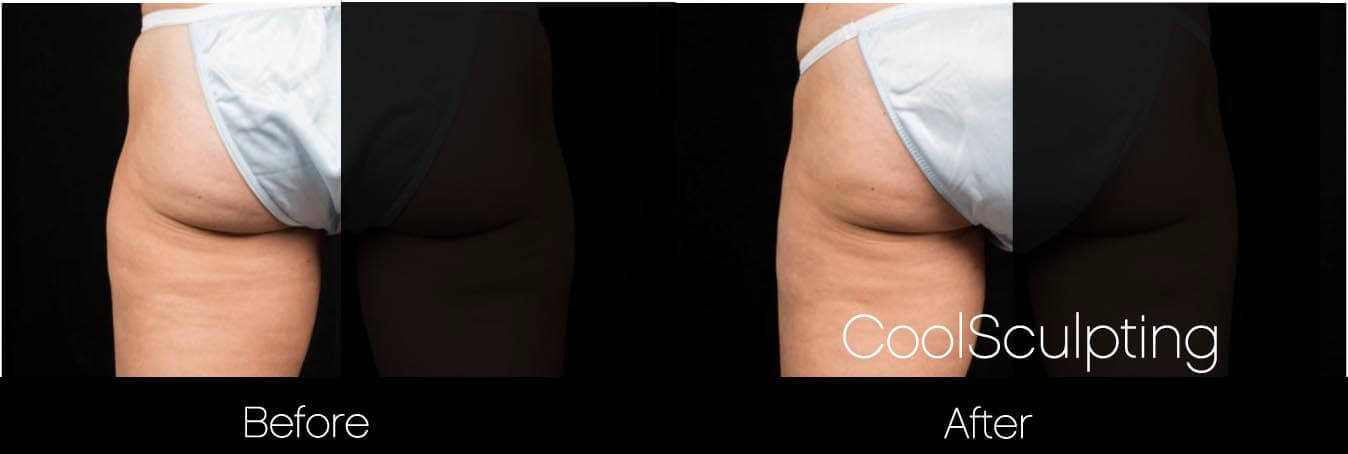 CoolSculpting - Before and After Gallery – Photo 46